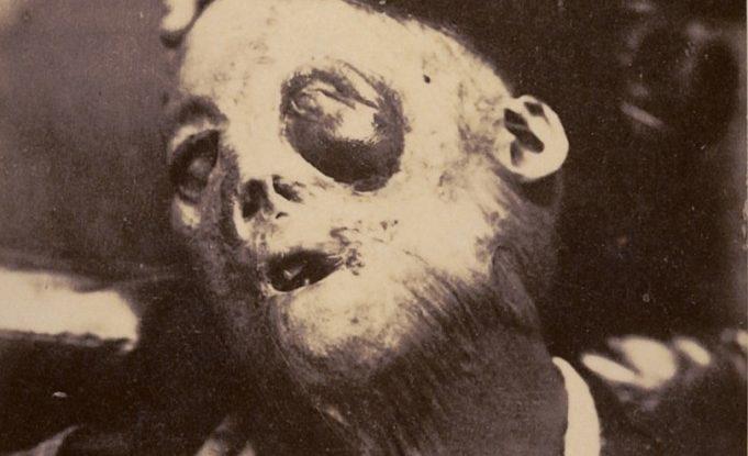 FOTO: Japonské lékařské fotografie kolem roku 1900