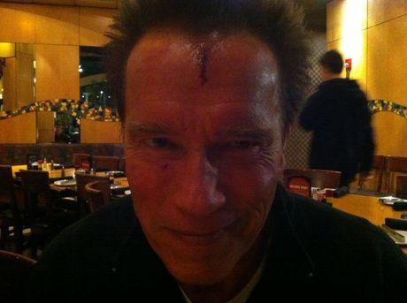FOTO: Arnold Schwarzenegger si rozbil čelo