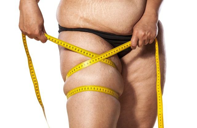 celulitida-strie-obezita-hubnuti