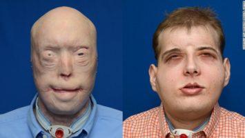 Patrick Hardinson transplantace obličeje