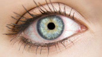 zarudle-cervene-oci operace šedého zákalu