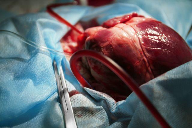 transplantace-srdce