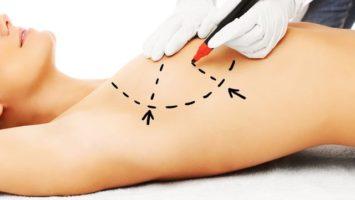 Zvětšení augmentace prsou, plastická operace prsou