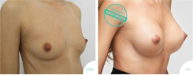 Zvětšení augmentace prsou Brandeis Clinic